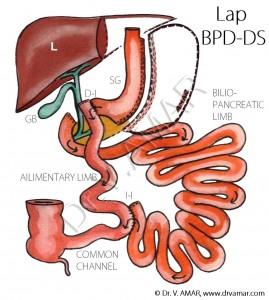 Lap BPD-DS - Named