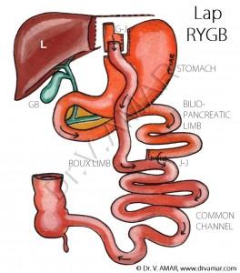 Lap RYGB - Named